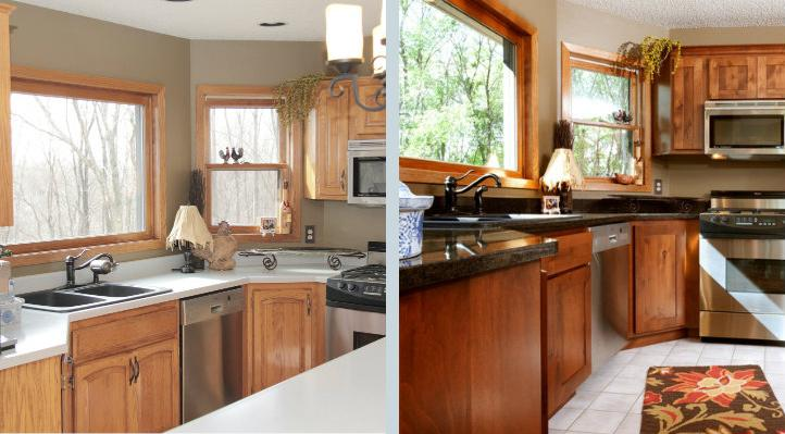 Refacing-Aunette-Before-And-After